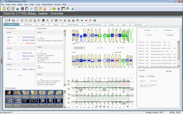 Carestream Dental EMR Software EHR and Practice Management Software